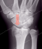 Compression Fracture of the Distal Radius