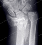 Complex Fracture of the Distal Radius