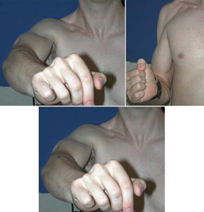 The Patient After Brachial Plexus Surgical Repair, exhibiting his recovery of function.