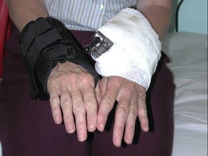 Scott Wolfe Md Upper Extremity Surgeon Wrist Fractures